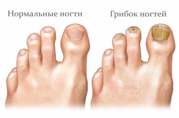 Яблочный уксус от грибка ногтей отзывы
