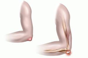 Шишка на локтевом суставе болит сустав указательный палец правой руки