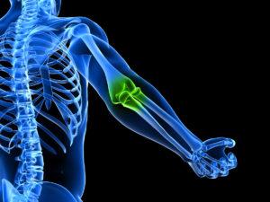 Скелет локтевого сустава на фото покраснение кожи на суставах