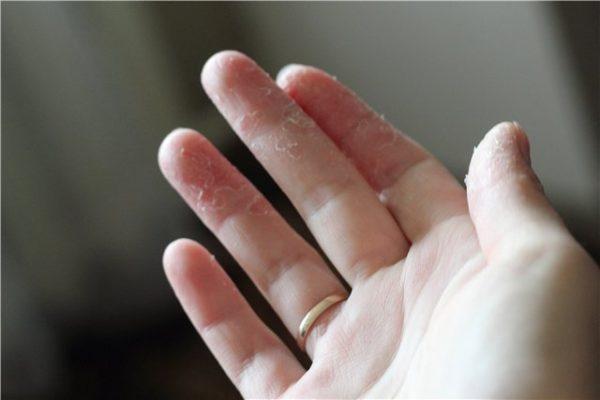 В этом случае малышу следует обеспечить нормальный питьевой режим, а шершавые участки кожи смазывать увлажняющим кремом липикар ксеранд, топикрем.