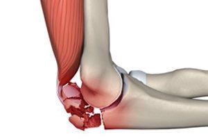 Перелом кости руки симптомы, как разработать руку после 1